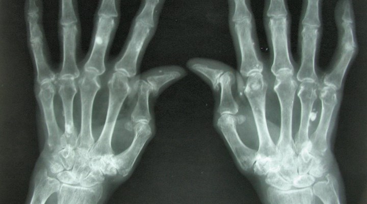 NRA Family: 7 Pistol-Shooting Tips For People With Arthritis